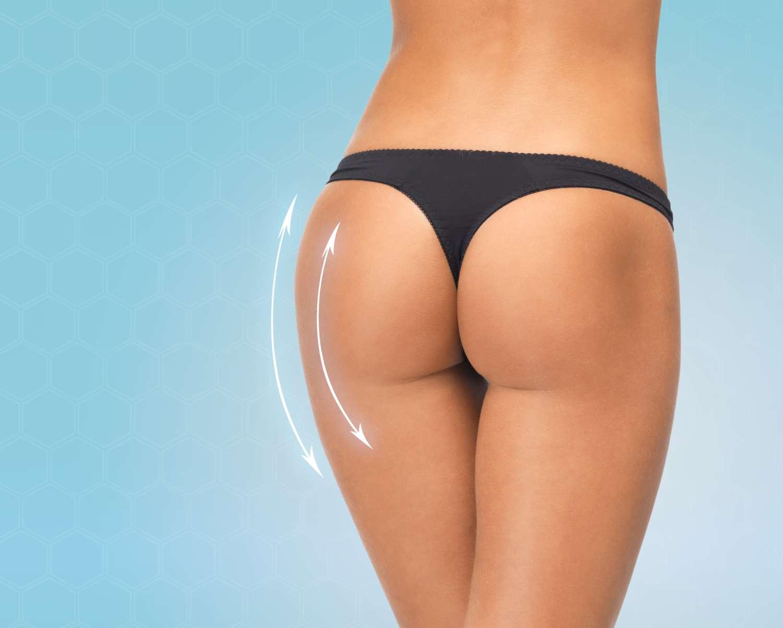 Cellulite and buttock augmentation