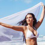 Contour irregularities after liposuction