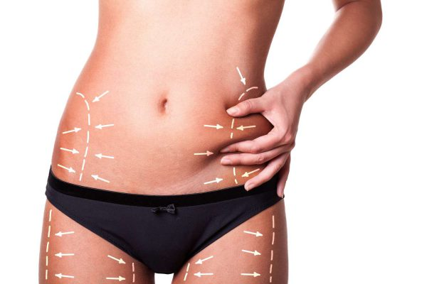Decreasing swelling after liposuction