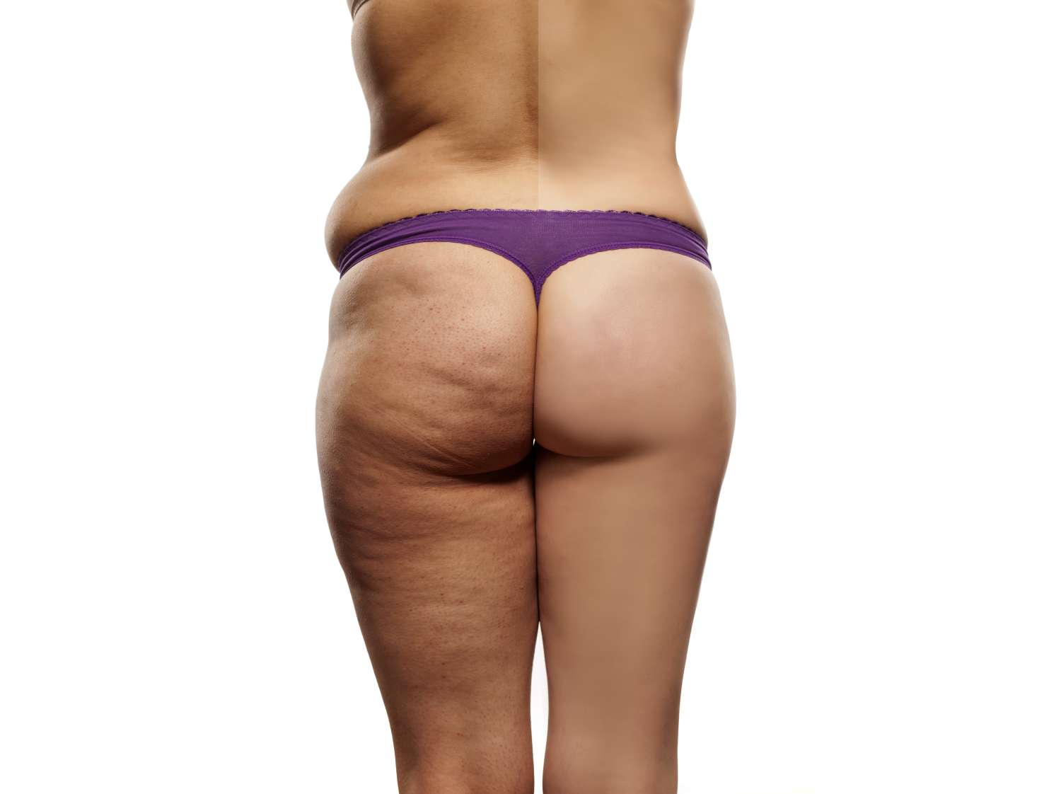 Expectations after a buttock enhancement procedure
