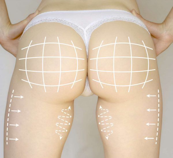 How to prepare for buttock enhancement