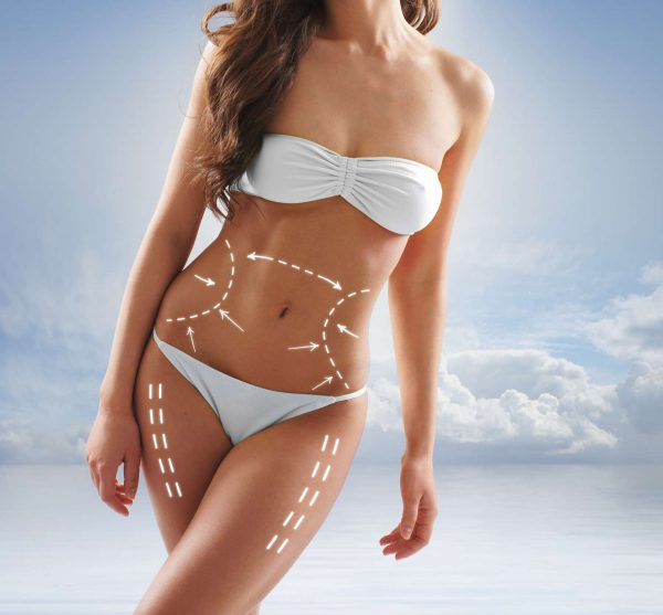 Liposuction and girdles