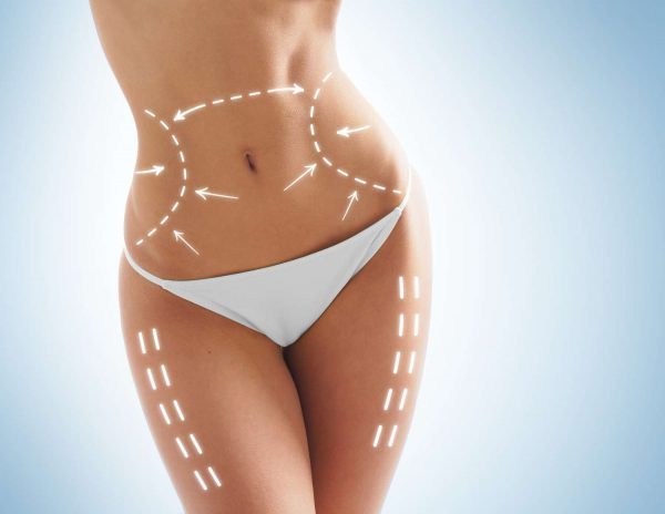 Liposuction cannot tight your skin
