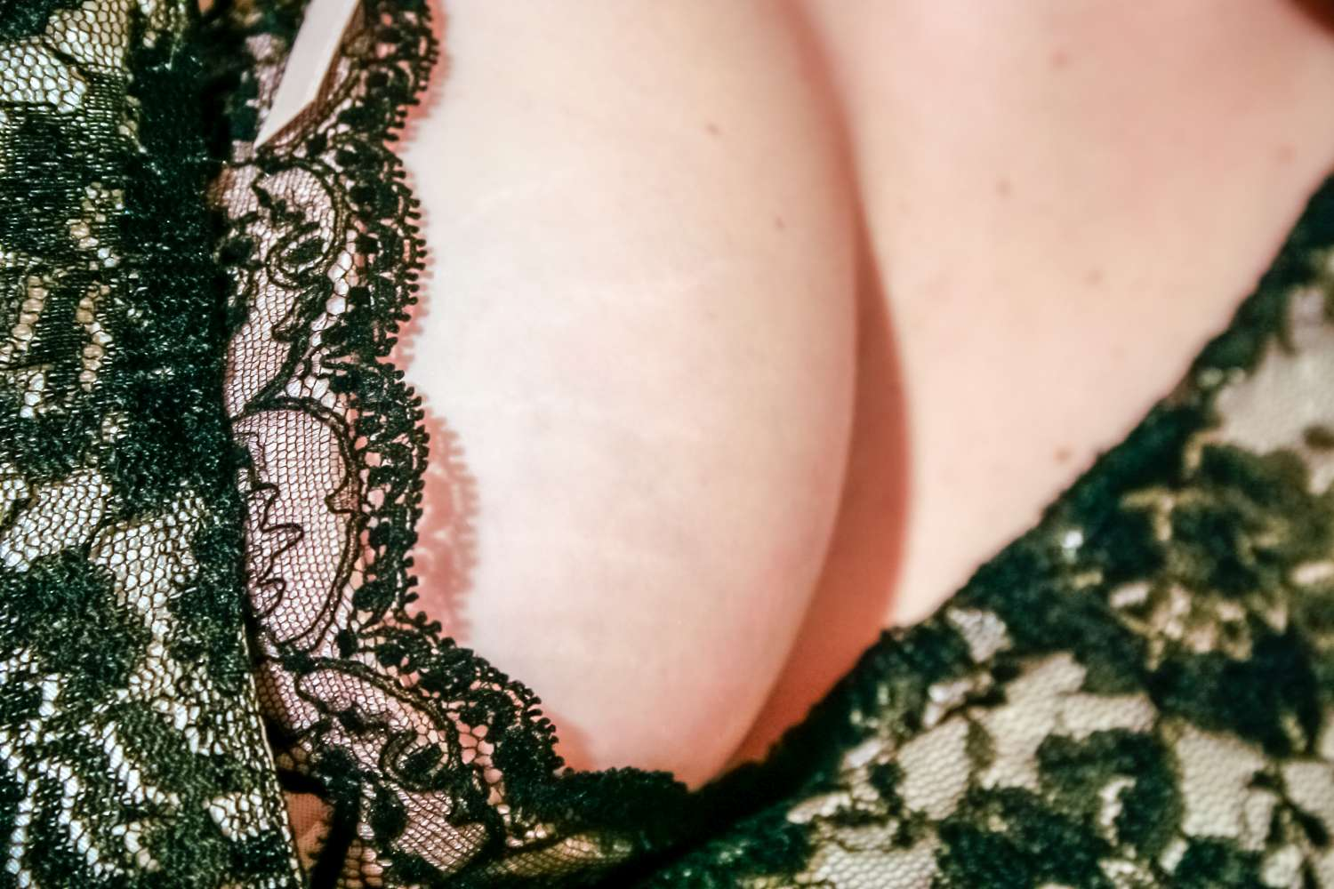 Myths and truths about breast implants