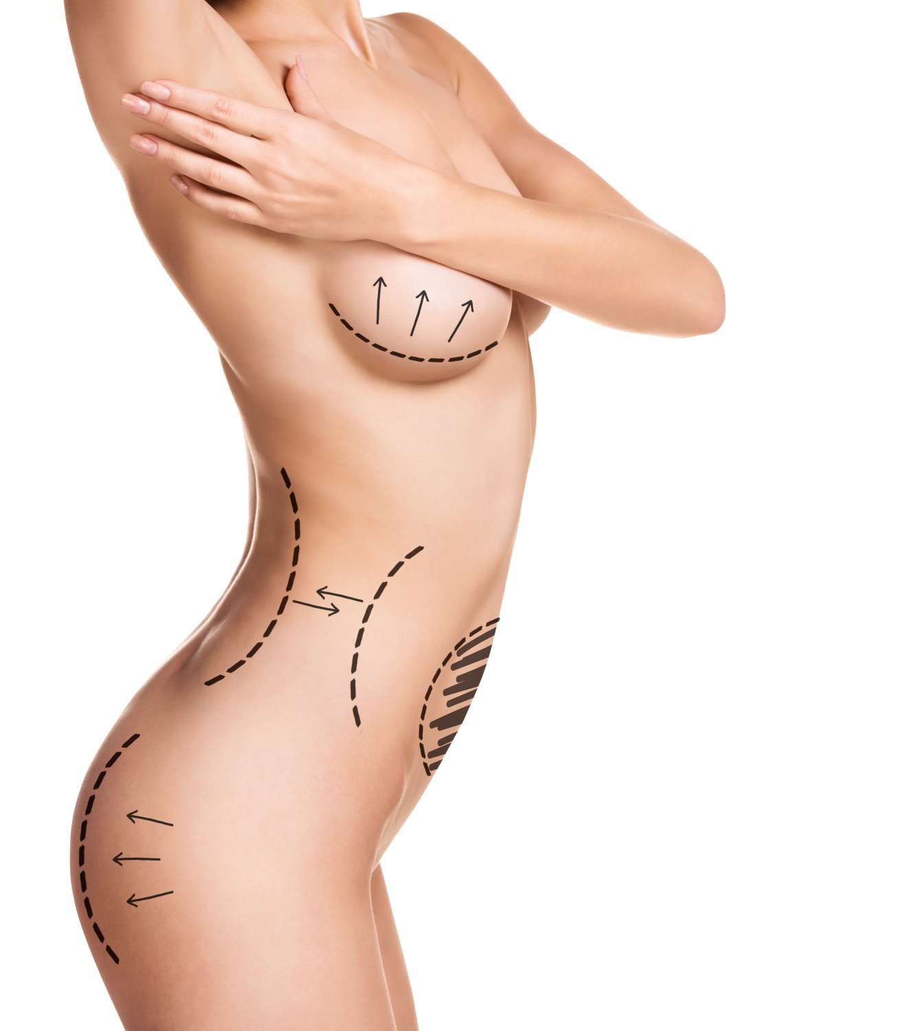 Pain after liposuction