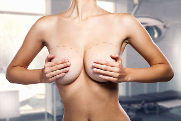 Scar after breast mastopexy