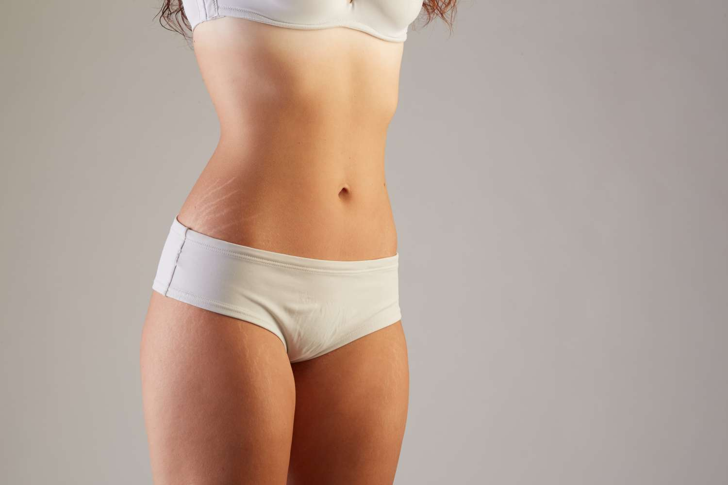 Stretch marks after a tummy tuck