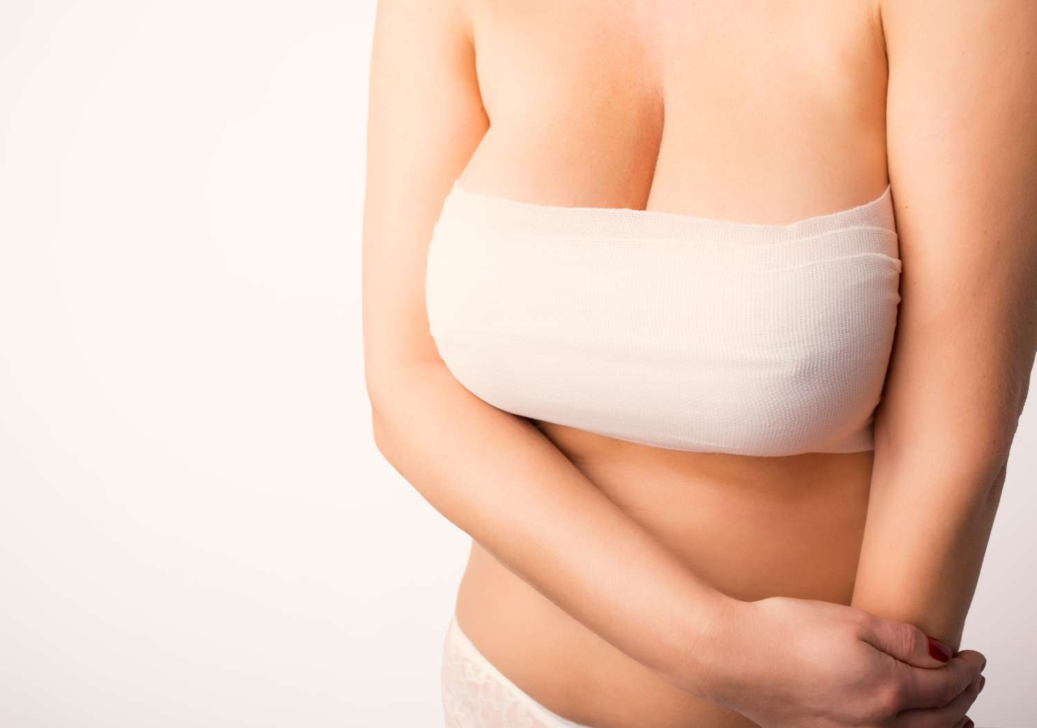 Stretch marks after breast augmentation
